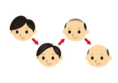 男性と頭髪の変化
