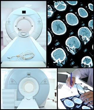 CTの装置と撮影した画像