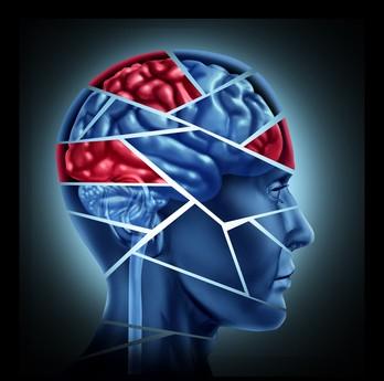 脳が壊れるイメージ