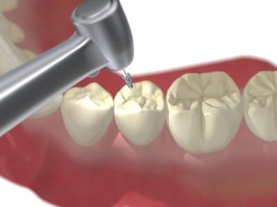 歯の治療で削っているところ
