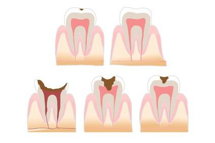 虫歯の経過