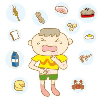アレルギーで蕁麻疹のできた子供